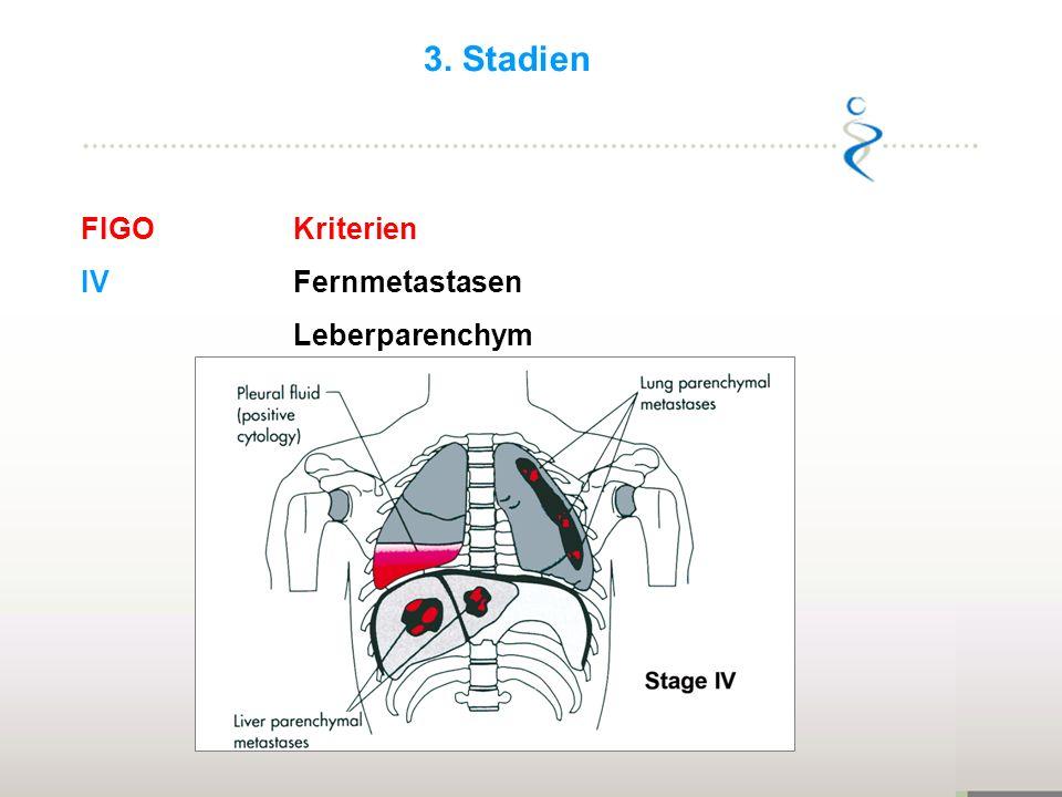 FIGOKriterien IVFernmetastasen Leberparenchym 3. Stadien