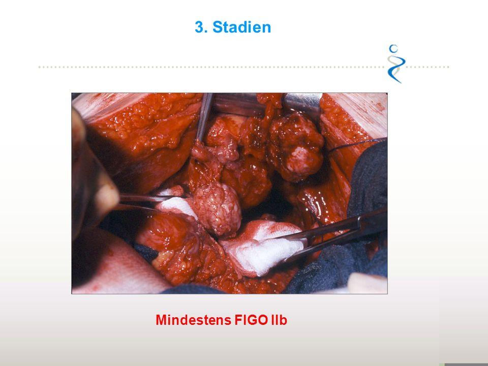 Mindestens FIGO IIb 3. Stadien