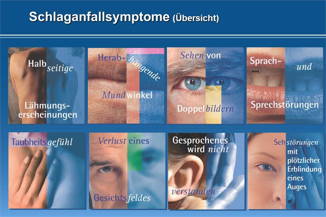 Halbseitige Lähmungserscheinungen und/oder Taubheitsgefühl auf einer Körperseite (vollständig oder teilweise) Herabhängender Mundwinkel Sprach- und Sprechstörungen Unfähigkeit, Gesprochenes zu verstehen Sehstörungen (einäugige Blindheit, Gesichtsfeldausfälle, Doppelbilder) Welches sind die Symptome eines Schlaganfalls?