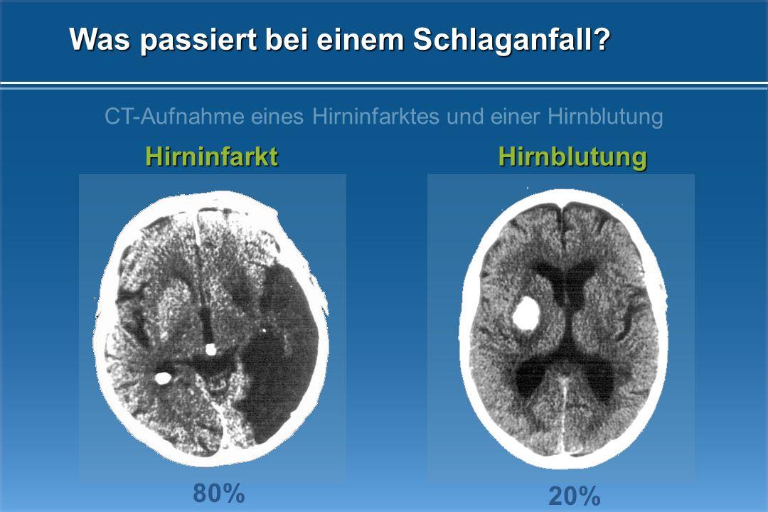 Eine akute Durchblutungsstörung des Gehirns. In ca. 20% eine Blutung im Gehirn In ca. 80% eine begrenzte Durchblutungsminderung Ein Schlaganfall ist f
