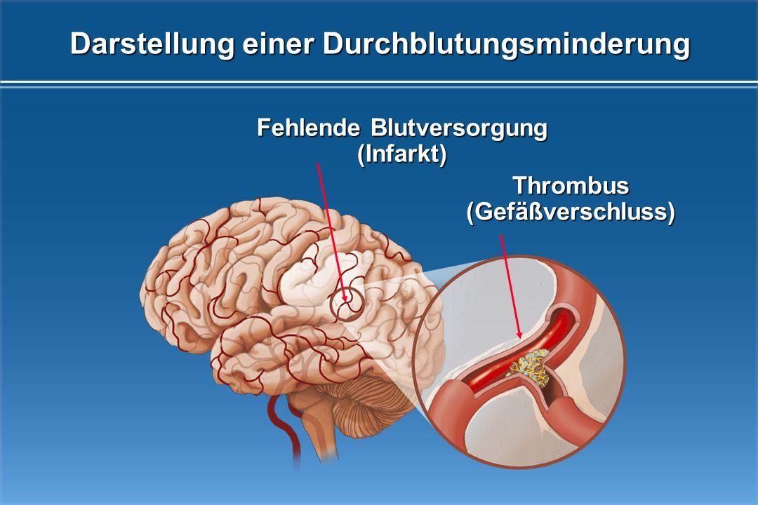 CT-Aufnahme eines Hirninfarktes und einer Hirnblutung HirninfarktHirnblutung 80% 20% Was passiert bei einem Schlaganfall?