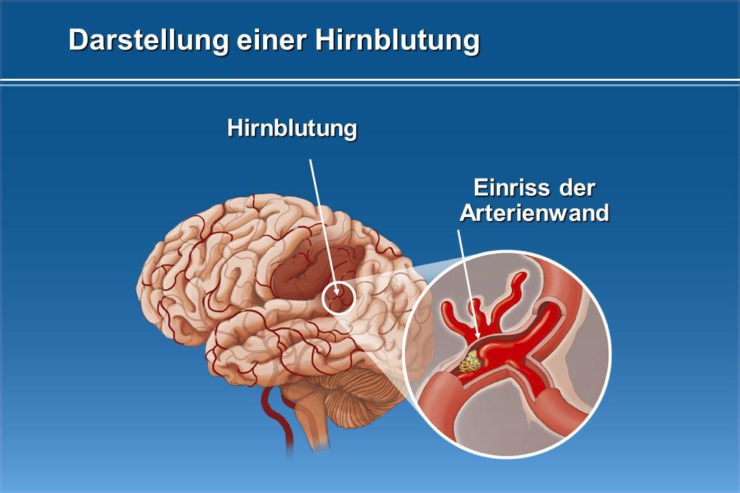 Fehlende Blutversorgung (Infarkt) Thrombus (Gefäßverschluss) Darstellung einer Durchblutungsminderung