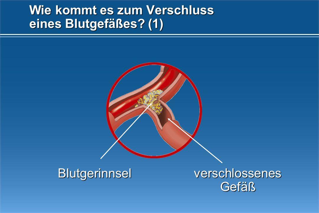 Hirnblutung Einriss der Arterienwand Darstellung einer Hirnblutung