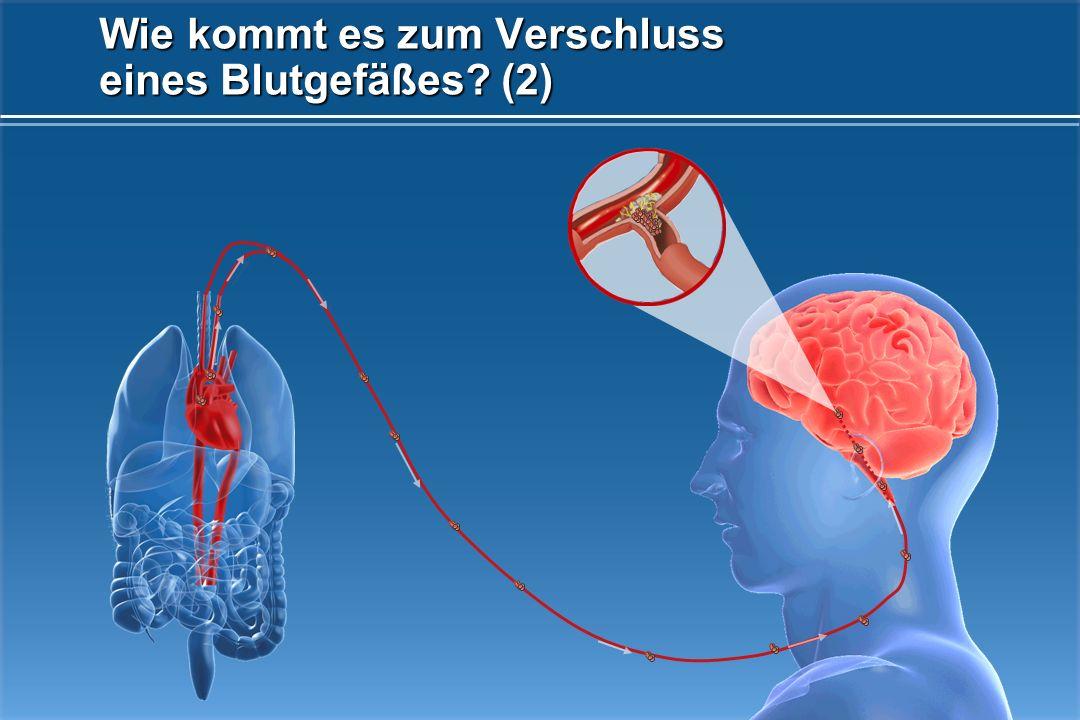 Blutgerinnsel verschlossenes Gefäß Wie kommt es zum Verschluss eines Blutgefäßes? (1)