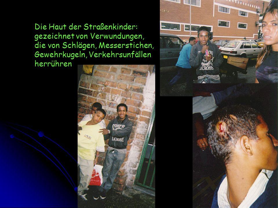 Die Haut der Straßenkinder: gezeichnet von Verwundungen, die von Schlägen, Messerstichen, Gewehrkugeln, Verkehrsunfällen herrühren