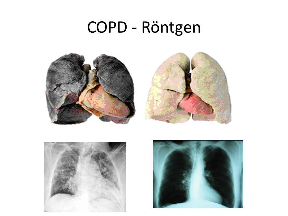 COPD - Röntgen