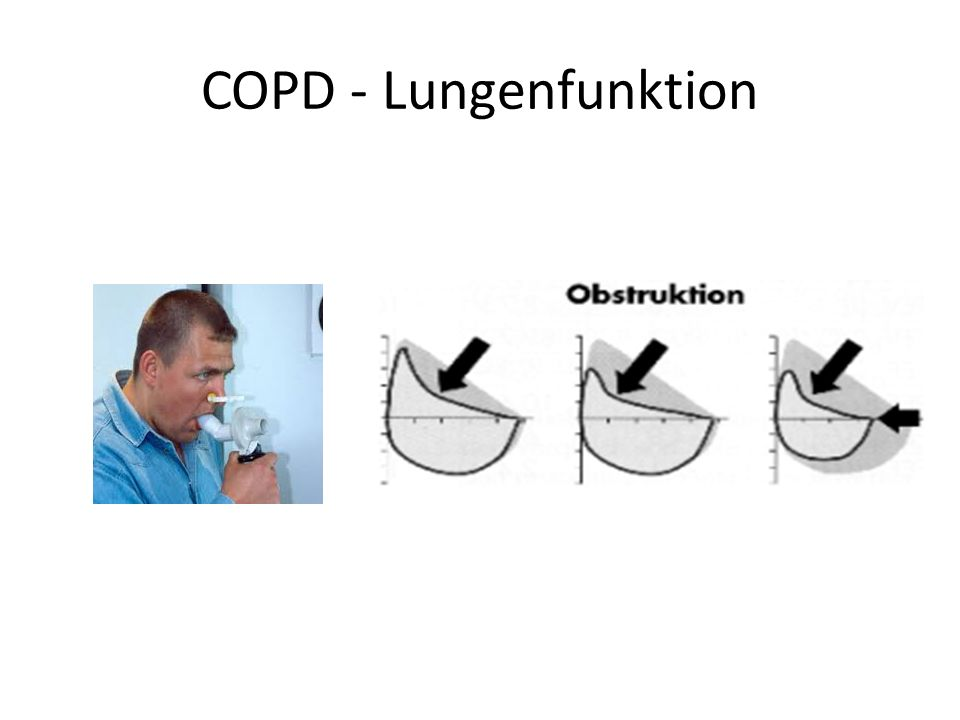COPD - Lungenfunktion
