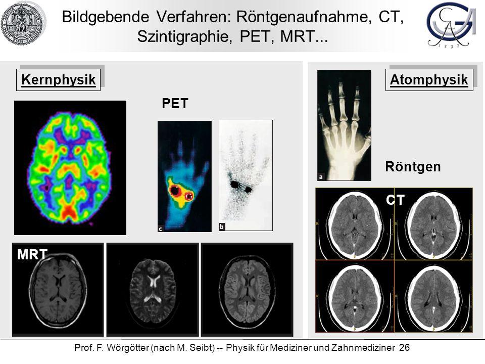 Prof. F. Wörgötter (nach M. Seibt) -- Physik für Mediziner und Zahnmediziner 26 Bildgebende Verfahren: Röntgenaufnahme, CT, Szintigraphie, PET, MRT...