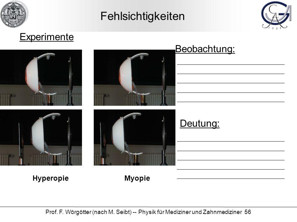 Prof. F. Wörgötter (nach M. Seibt) -- Physik für Mediziner und Zahnmediziner 56 Fehlsichtigkeiten Beobachtung: Deutung: Experimente Myopie Hyperopie