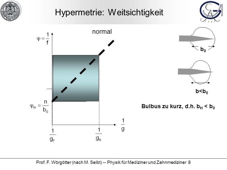 Prof. F. Wörgötter (nach M. Seibt) -- Physik für Mediziner und Zahnmediziner 8 Hypermetrie: Weitsichtigkeit b0b0 b<b 0 Bulbus zu kurz, d.h. b H < b 0