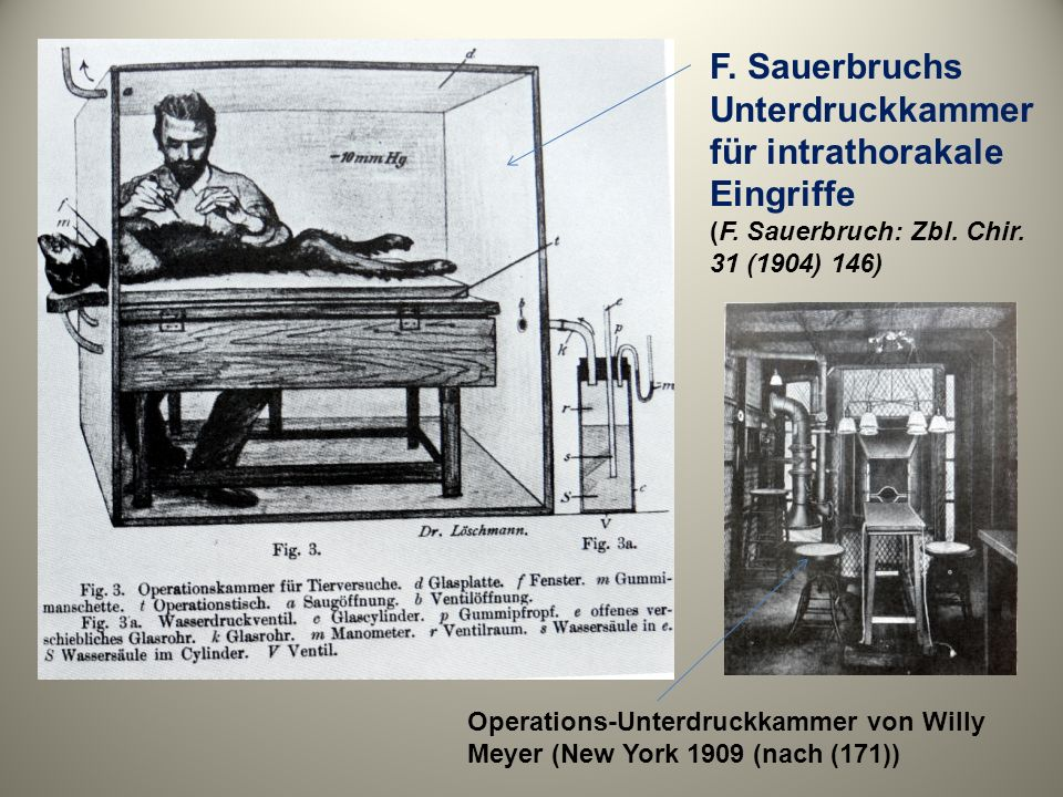 F. Sauerbruchs Unterdruckkammer für intrathorakale Eingriffe (F. Sauerbruch: Zbl. Chir. 31 (1904) 146) Operations-Unterdruckkammer von Willy Meyer (Ne