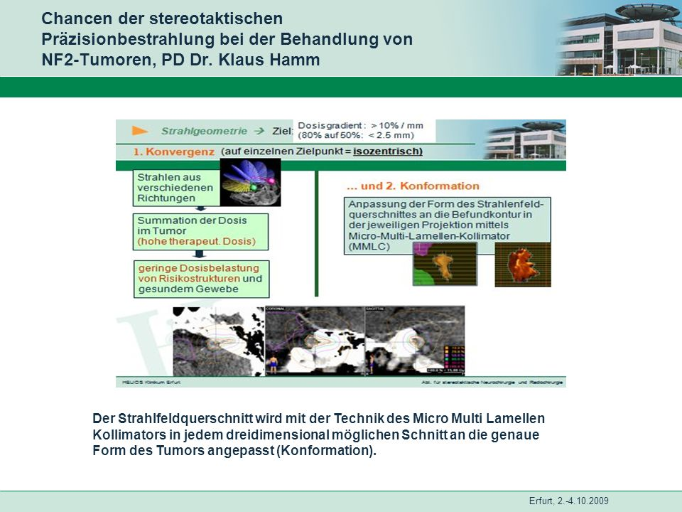 Erfurt, 2.-4.10.2009 Chancen der stereotaktischen Präzisionbestrahlung bei der Behandlung von NF2-Tumoren, PD Dr. Klaus Hamm Der Strahlfeldquerschnitt