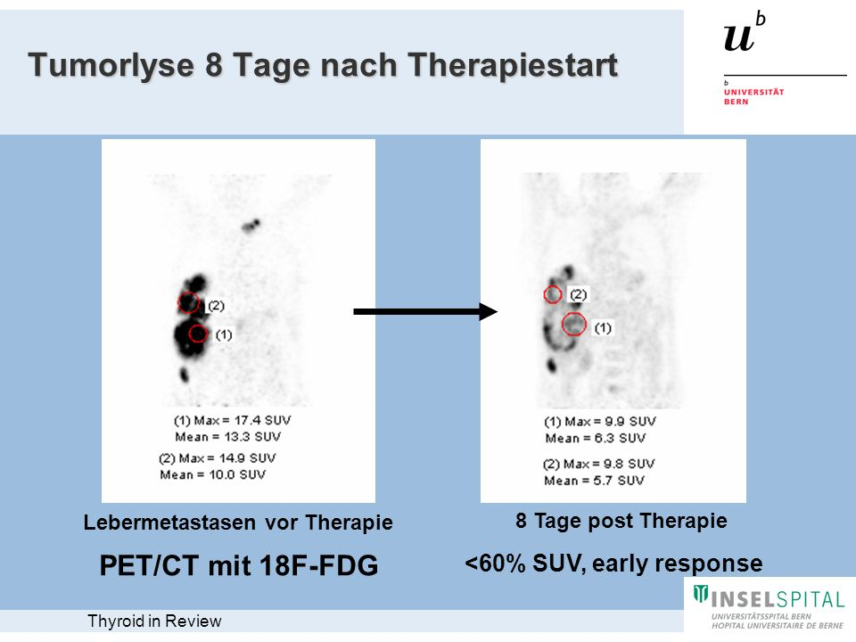 Tumorlyse 8 Tage nach Therapiestart Lebermetastasen vor Therapie 8 Tage post Therapie <60% SUV, early response PET/CT mit 18F-FDG Thyroid in Review