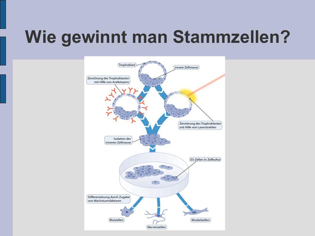 Wie gewinnt man Stammzellen?