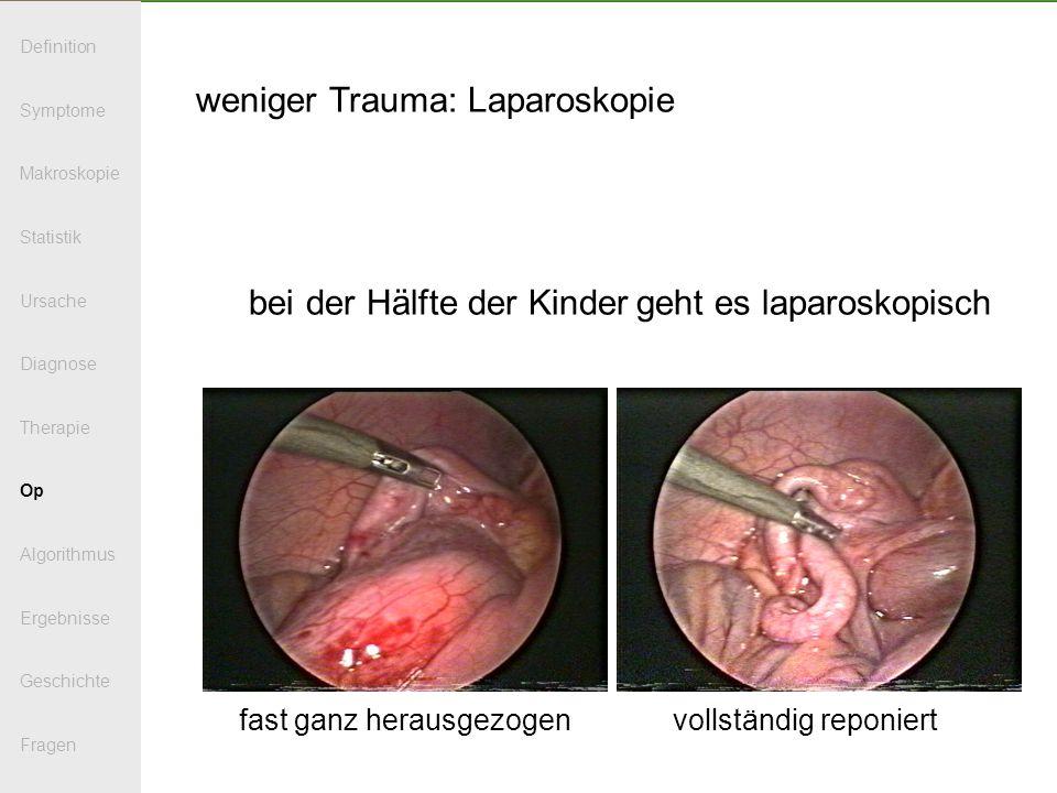 weniger Trauma: Laparoskopie bei der Hälfte der Kinder geht es laparoskopisch fast ganz herausgezogen vollständig reponiert Definition Symptome Makros