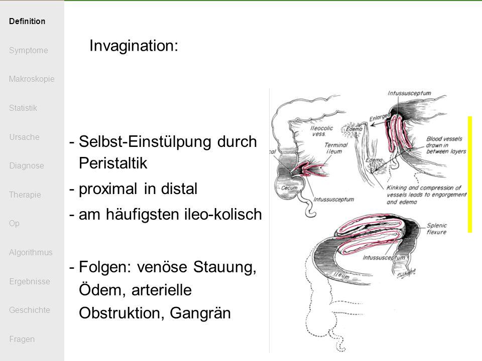 Invagination: - Selbst-Einstülpung durch Peristaltik - proximal in distal - am häufigsten ileo-kolisch - Folgen: venöse Stauung, Ödem, arterielle Obst