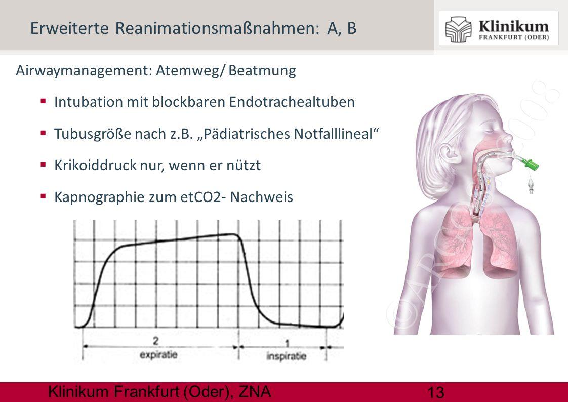 13 Klinikum Frankfurt (Oder), ZNA Airwaymanagement: Atemweg/ Beatmung Intubation mit blockbaren Endotrachealtuben Tubusgröße nach z.B. Pädiatrisches N