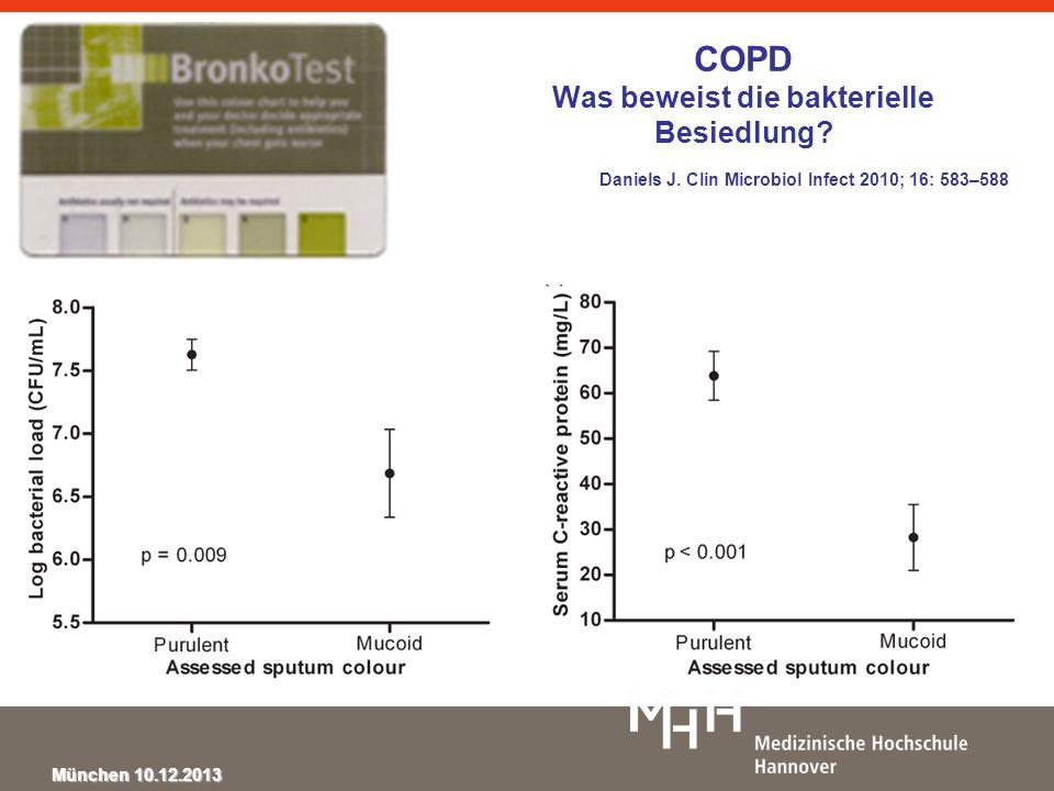 München 10.12.2013 Pathogenes in CAP (using Bartlett Criteria) Data from the German CAPNETZ Welte T.