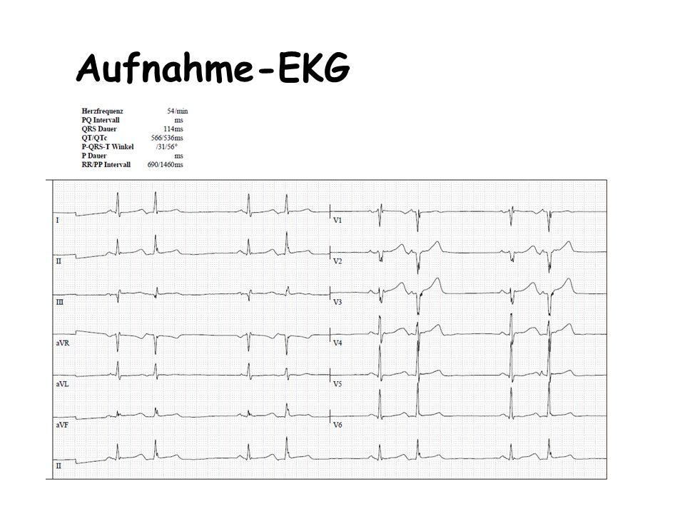 Aufnahme-EKG
