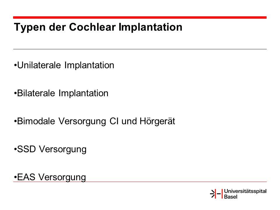 Typen der Cochlear Implantation Unilaterale Implantation Bilaterale Implantation Bimodale Versorgung CI und Hörgerät SSD Versorgung EAS Versorgung