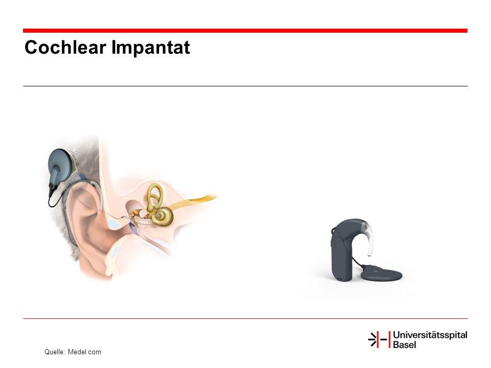 Cochlear Impantat Quelle: Medel com