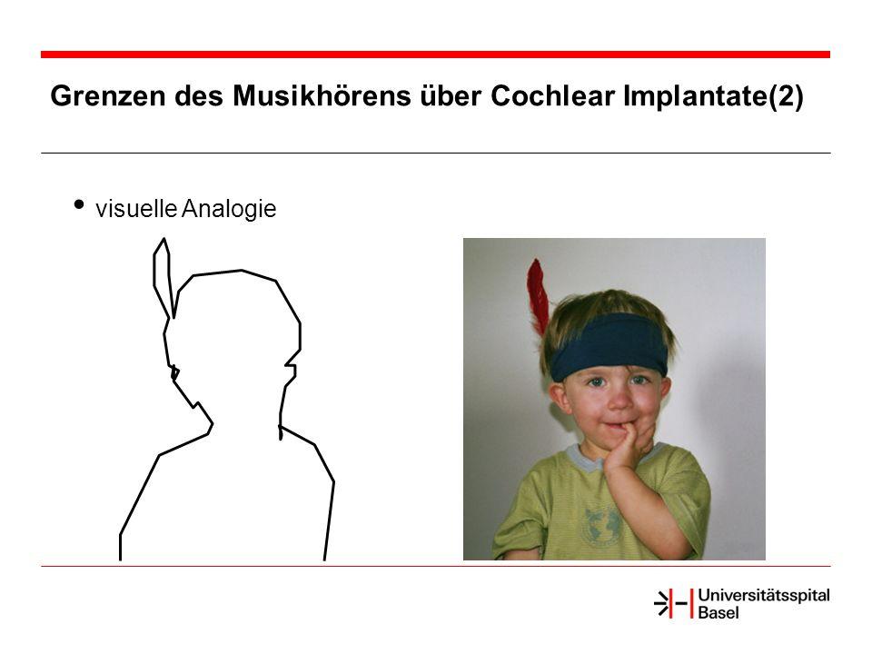 Grenzen des Musikhörens über Cochlear Implantate(2) visuelle Analogie
