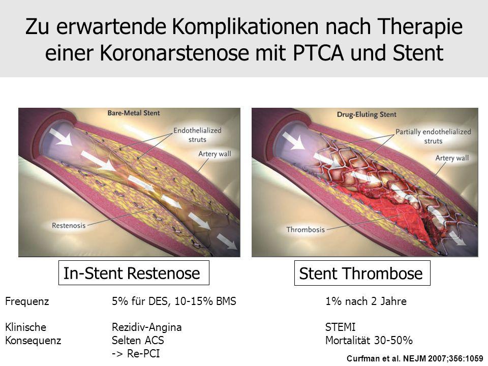 Zu erwartende Komplikationen nach Therapie einer Koronarstenose mit PTCA und Stent In-Stent Restenose Stent Thrombose Curfman et al. NEJM 2007;356:105