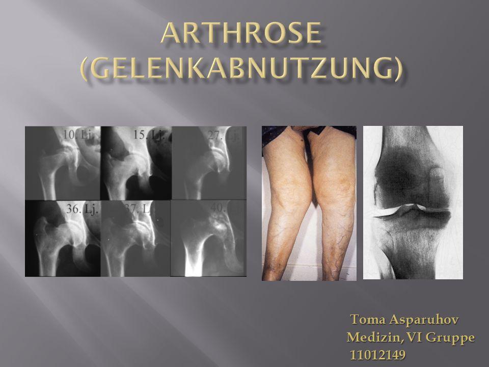 Bei Arthrose (Gelenkverschleiß) nutzt sich die Knorpelschicht des Gelenks nach und nach ab.