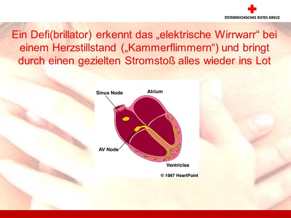 Ein Defi(brillator) erkennt das elektrische Wirrwarr bei einem Herzstillstand (Kammerflimmern) und bringt durch einen gezielten Stromstoß alles wieder ins Lot