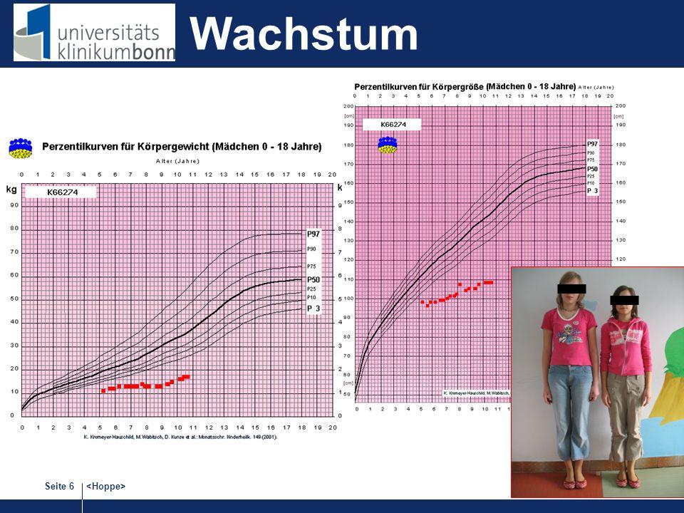 Seite 17 Mittlere Wartezeit (Monate) für Kinder 2005 Switzerland Keine wesentliche Änderung bis 2014.