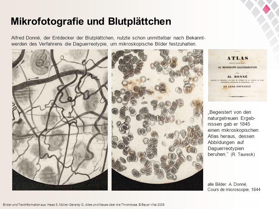 Bilder und Textinformation aus: Haas S, Müller-Gerardy G, Altes und Neues über die Thrombose, © Bayer Vital 2008 Mikrofotografie und Blutplättchen alle Bilder: A.