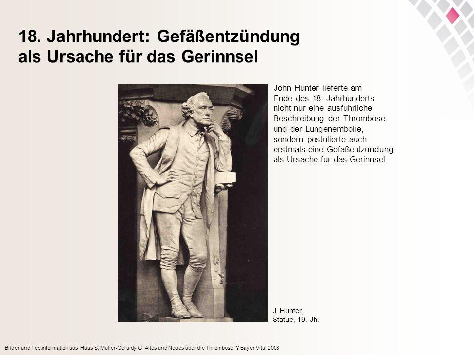 Bilder und Textinformation aus: Haas S, Müller-Gerardy G, Altes und Neues über die Thrombose, © Bayer Vital 2008 18. Jahrhundert: Gefäßentzündung als