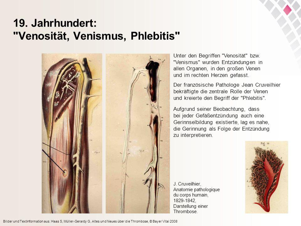 Bilder und Textinformation aus: Haas S, Müller-Gerardy G, Altes und Neues über die Thrombose, © Bayer Vital 2008 19. Jahrhundert: