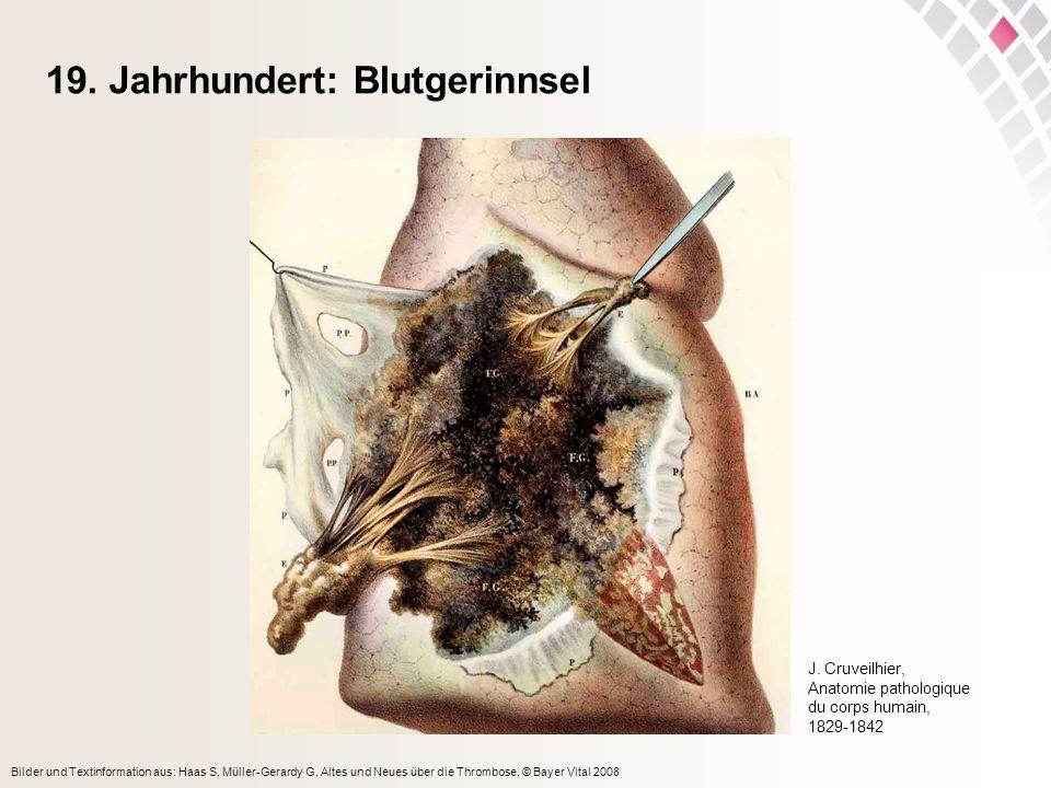 Bilder und Textinformation aus: Haas S, Müller-Gerardy G, Altes und Neues über die Thrombose, © Bayer Vital 2008 19. Jahrhundert: Blutgerinnsel J. Cru