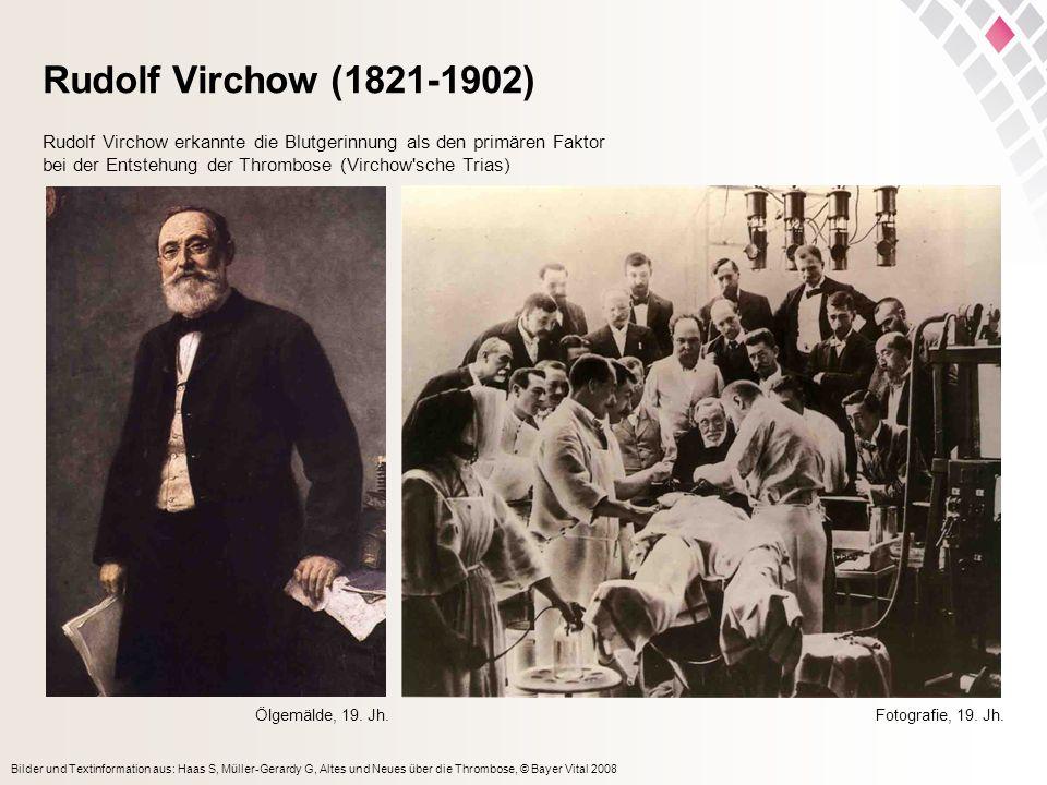 Bilder und Textinformation aus: Haas S, Müller-Gerardy G, Altes und Neues über die Thrombose, © Bayer Vital 2008 Rudolf Virchow (1821-1902) Ölgemälde,