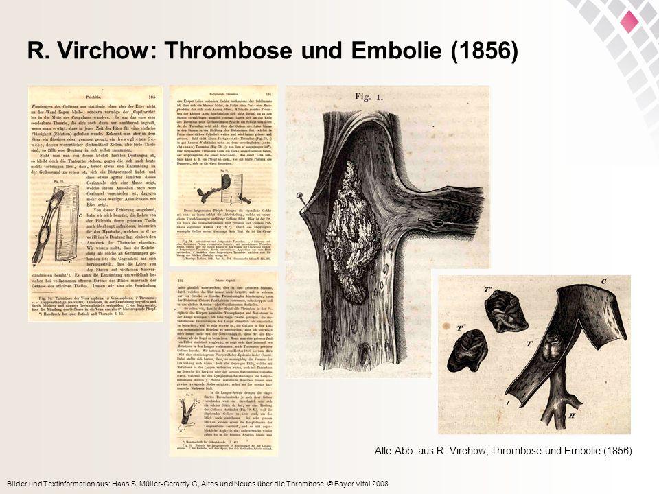 Bilder und Textinformation aus: Haas S, Müller-Gerardy G, Altes und Neues über die Thrombose, © Bayer Vital 2008 R. Virchow: Thrombose und Embolie (18