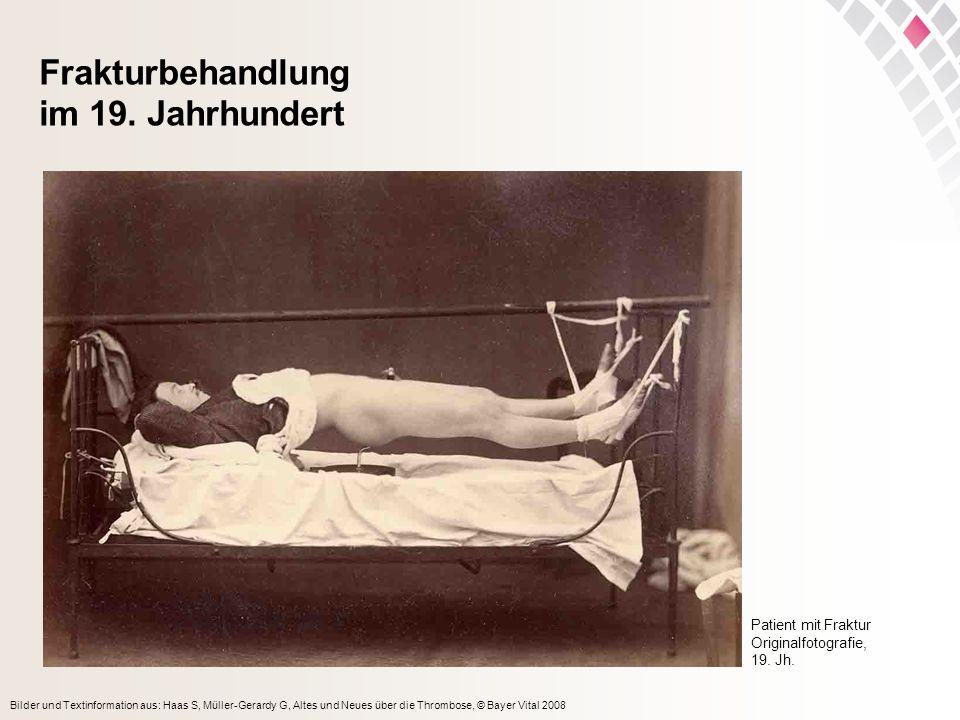Bilder und Textinformation aus: Haas S, Müller-Gerardy G, Altes und Neues über die Thrombose, © Bayer Vital 2008 Frakturbehandlung im 19. Jahrhundert