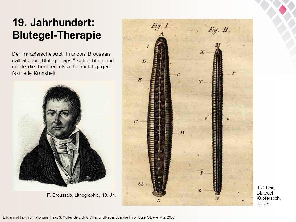Bilder und Textinformation aus: Haas S, Müller-Gerardy G, Altes und Neues über die Thrombose, © Bayer Vital 2008 19. Jahrhundert: Blutegel-Therapie J.