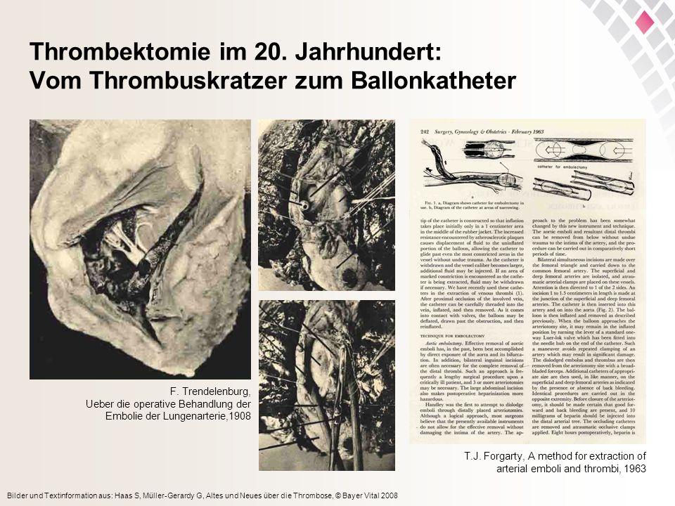 Bilder und Textinformation aus: Haas S, Müller-Gerardy G, Altes und Neues über die Thrombose, © Bayer Vital 2008 Thrombektomie im 20. Jahrhundert: Vom