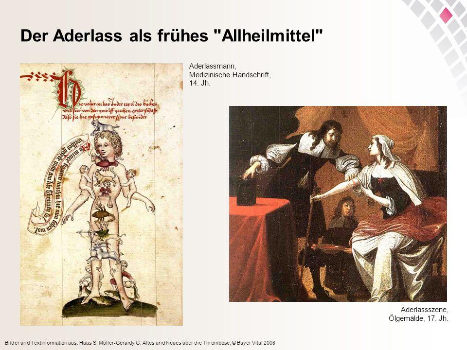 Bilder und Textinformation aus: Haas S, Müller-Gerardy G, Altes und Neues über die Thrombose, © Bayer Vital 2008 Der Aderlass als frühes Allheilmittel Aderlassszene, Ölgemälde, 17.