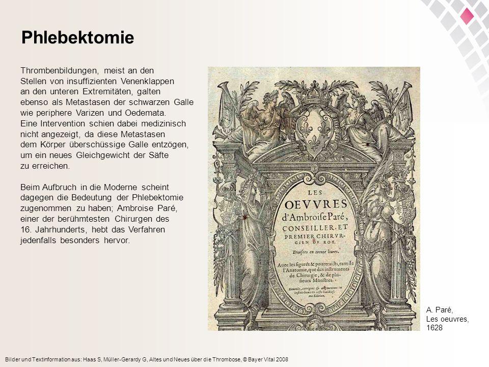 Bilder und Textinformation aus: Haas S, Müller-Gerardy G, Altes und Neues über die Thrombose, © Bayer Vital 2008 Phlebektomie Thrombenbildungen, meist
