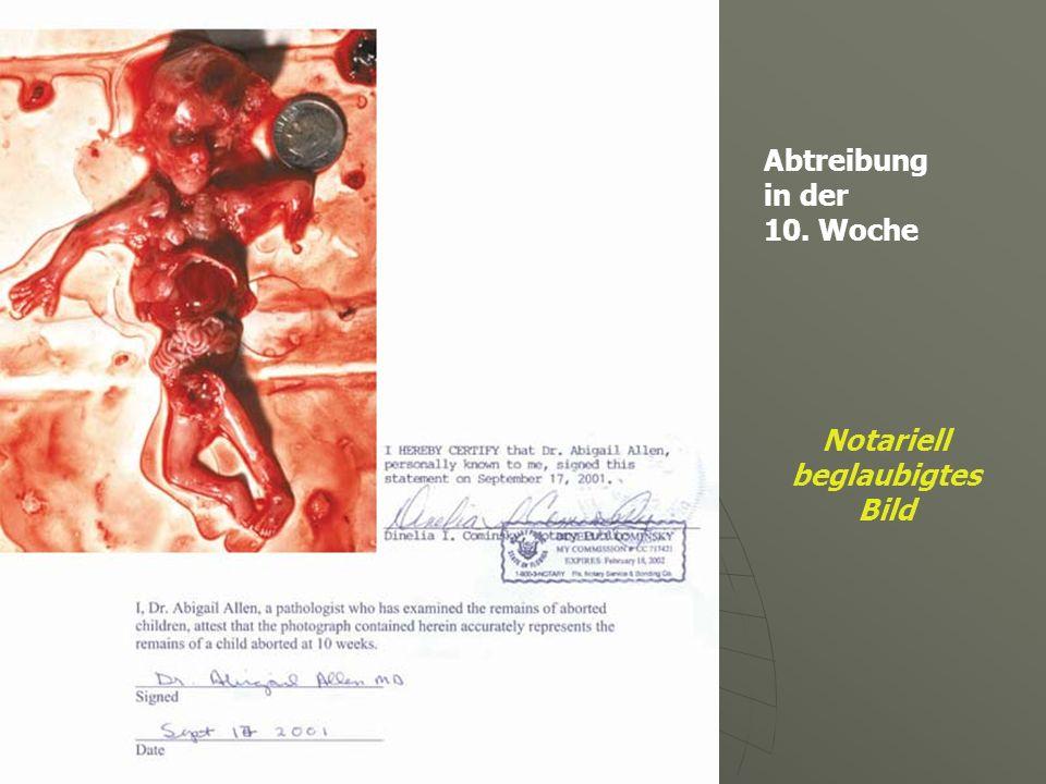 Abtreibung in der 10. Woche Notariell beglaubigtes Bild