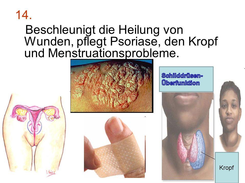 14. Beschleunigt die Heilung von Wunden, pflegt Psoriase, den Kropf und Menstruationsprobleme. Kropf