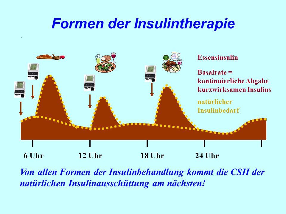 6 Uhr12 Uhr18 Uhr24 Uhr Essensinsulin Basalrate = kontinuierliche Abgabe kurzwirksamen Insulins Von allen Formen der Insulinbehandlung kommt die CSII