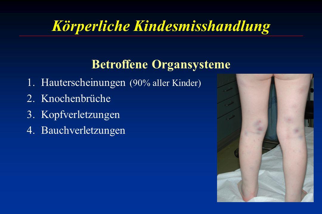 1.Hauterscheinungen (90% aller Kinder) 2.Knochenbrüche 3.Kopfverletzungen 4.Bauchverletzungen Körperliche Kindesmisshandlung Betroffene Organsysteme