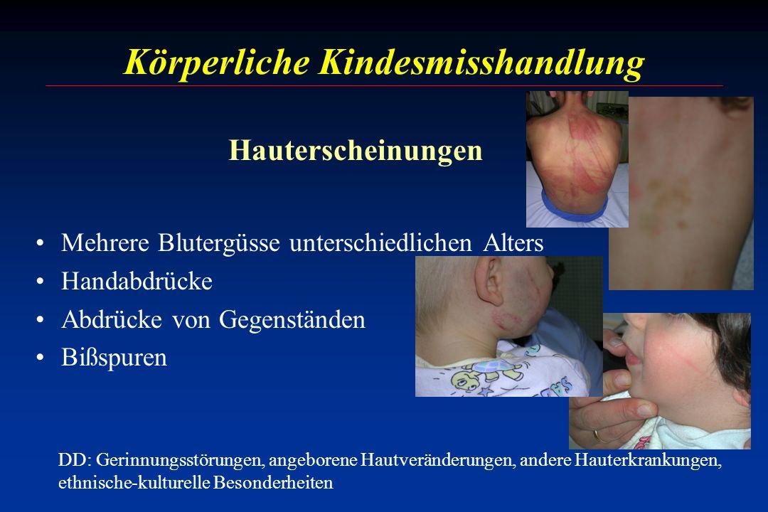Körperliche Kindesmisshandlung Mehrere Blutergüsse unterschiedlichen Alters Handabdrücke Abdrücke von Gegenständen Bißspuren DD: Gerinnungsstörungen,