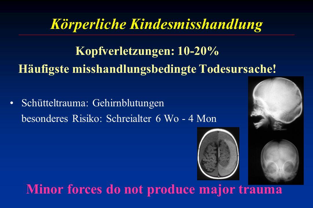 Körperliche Kindesmisshandlung Kopfverletzungen: 10-20% Häufigste misshandlungsbedingte Todesursache! Schütteltrauma: Gehirnblutungen besonderes Risik