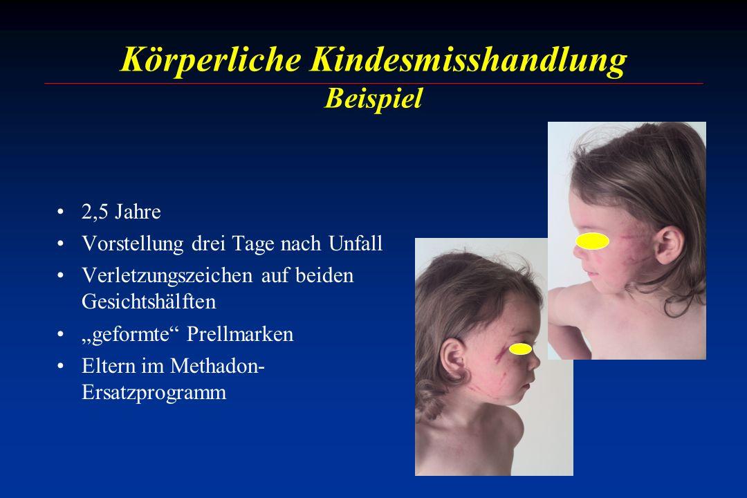 Körperliche Kindesmisshandlung Beispiel 2,5 Jahre Vorstellung drei Tage nach Unfall Verletzungszeichen auf beiden Gesichtshälften geformte Prellmarken