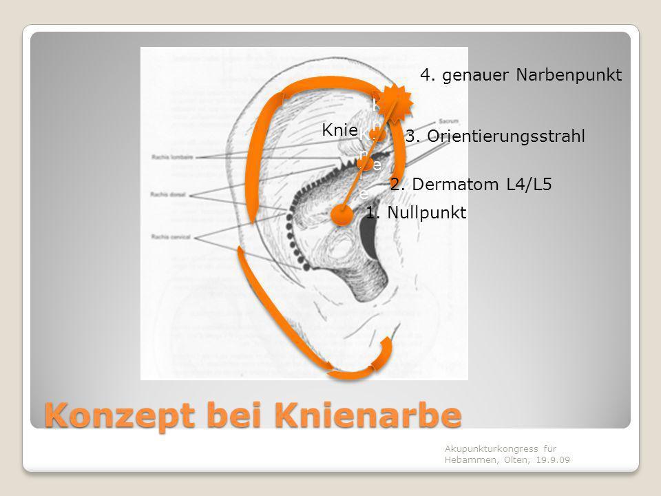Nadeltechnik Bei rein äusserlichen Narben -> Narbenpunkt im Ohr subkutan entlang der betreffenden Ohrrandzone Bei vermuteten innerlichen Narben -> normalen Ohrpunkt hinzufügen normale Nadelung Dauer: 20 Min.