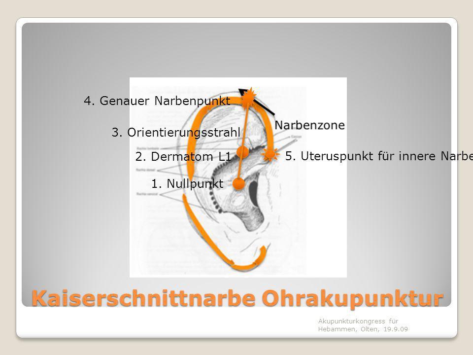 Kaiserschnittnarbe Ohrakupunktur Akupunkturkongress für Hebammen, Olten, 19.9.09 1. Nullpunkt 2. Dermatom L1 3. Orientierungsstrahl 4. Genauer Narbenp